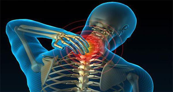 Rückenschmerzen, Nackenschmerzen und Kreuzschmerzen