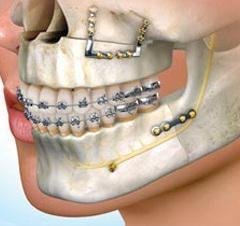 chirurgia ortognatica prima e dopo: recensioni