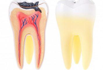 Nota: come uccidere il nervo del dente?