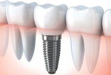 coroa dentária sobre implante: as sutilezas de instalação