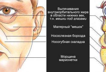 """""""Dermahil"""" (z worków pod oczami): recenzje kosmetologów, fotografia, przeciwwskazania. Jak kłuć """"Dermahil"""" z worków pod oczami?"""
