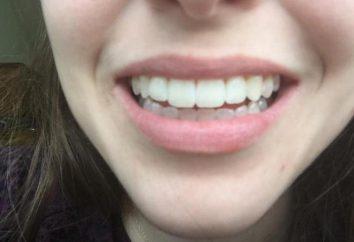 denti Magia imbianchi: recensioni dei dentisti
