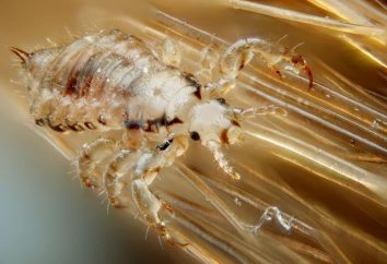Pidocchi: Come visualizzare i parassiti