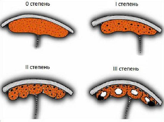 Plazenta Reifegrad während der Schwangerschaft