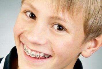 accolades pour les enfants: types, photos d'installation