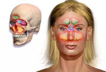 Was ist Sinusitis? Wie gefährlich Sinusitis, wenn es nicht zu behandeln?