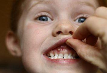 Ulcere sulle gengive del bambino: cause e trattamento