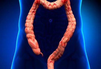 Obstrução intestinal dinâmica: classificação, causas, sintomas e tratamento
