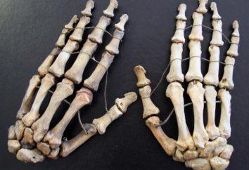 Braccio ossa: i nomi e le funzioni. Che cosa succede se l'osso del braccio dolorante