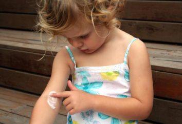 Psoriasi in un bambino: cause, sintomi, il trattamento