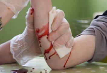 Pronto soccorso per sanguinamento. Tipi di sanguinamento e la fornitura di primo soccorso