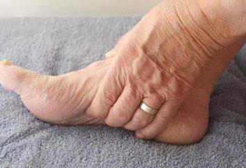 Gonfiore delle gambe dopo una frattura alla gamba: cause, il trattamento. medicina rigenerativa