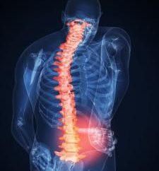 LFK zadania w osteochondroza części lędźwiowej kręgosłupa