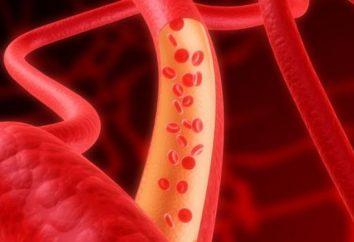 Hipocalcemia: síntomas, causas, tratamiento