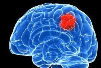 zarodkowy mózgowa: objawy, rokowanie