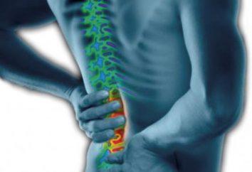 ¿Cómo elegir el cinturón para la espalda. cinturón ortopédico para la espalda: opiniones, precios