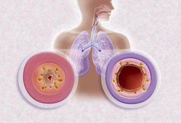 Ist es möglich, Dosen in Bronchitis zu setzen: Gebrauchsanweisung, Hinweise und Rezensionen