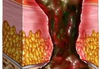 Die Behandlung von Osteomyelitis und Verwendung atibiotikov damit umgehen