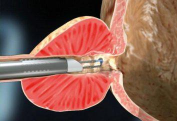 vaporizzazione laser di cervicale: descrizione della procedura e delle prove