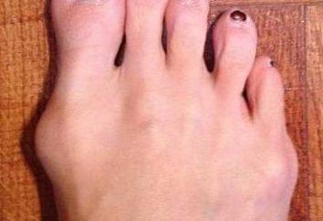Dove ci sono dossi sui grandi dita dei piedi, e cosa significa questo?