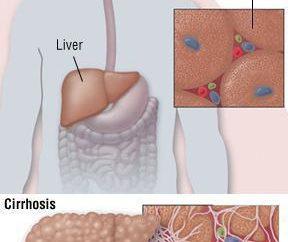 Objawy zapalenia wątroby typu C wśród mężczyzn. Objawy, leczenie, zapobieganie