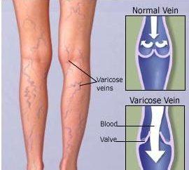 Vene varicose. Strisciare vene delle gambe, cosa fare?