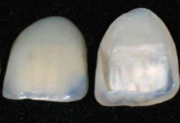 Quais são os folheados para os dentes? Almofadas para dentes – folheados