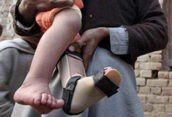 Les symptômes de la polio chez les enfants et les adultes