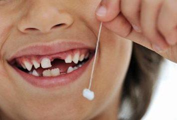 Was ist zu tun, wenn das Baby Zähne herausfallen