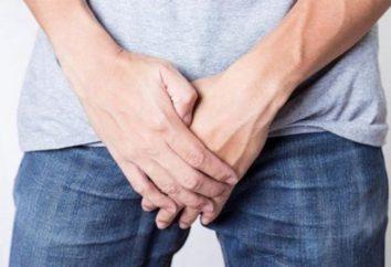 Przewlekłe zapalenie gruczołu krokowego: skutki, objawy i leczenie