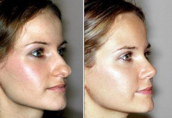 Korekcja przed i po zabiegu