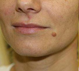 Ist es möglich, Mole auf dem Gesicht ohne Narben zu entfernen? Kann ich das Muttermal auf seinem Gesicht entfernen, aus dem das Haar wächst?