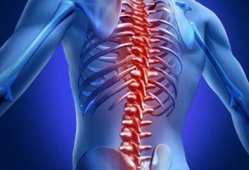 Spondylarthrosis – co to jest? Przyczyny, objawy i metody leczenia