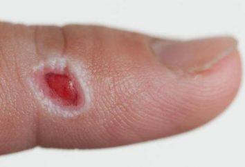 Granulację rany – co to jest? Gojenie granulacji