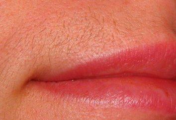 Laserowe usuwanie włosów górna warga: skuteczna procedura zwalczania znudzone włosków