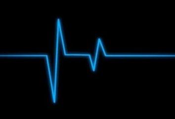 Was wird das EKG Herz? Anzeichen von Krankheit