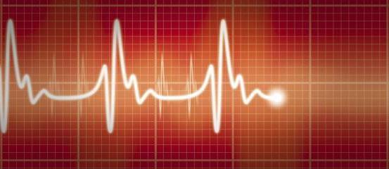 tachycardie symptômes fatigue