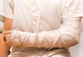Pierwsza pomoc dla złamań kończyn: krok po kroku opis zaleceń i leczenie