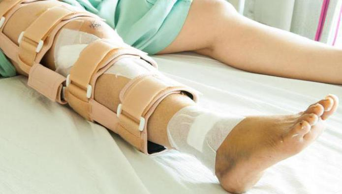 wann zuggurtung aus kniescheibe entfernen