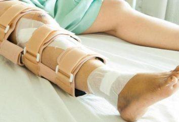 Frattura della rotula: sintomi e trattamento