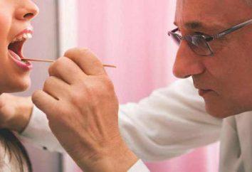 Catarrale faringite: cause, sintomi e trattamento