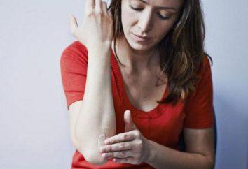 La migliore crema sulla pelle di allergia negli adulti: una revisione e feedback