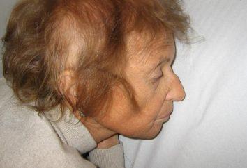 El síndrome de Werner: descripción y síntomas