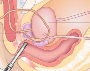 Przezodbytniczej USG prostaty: opis, przygotowanie i poradę