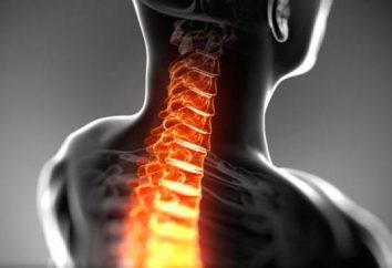 Espasmos de los músculos del cuello: Síntomas, Causas y Tratamientos