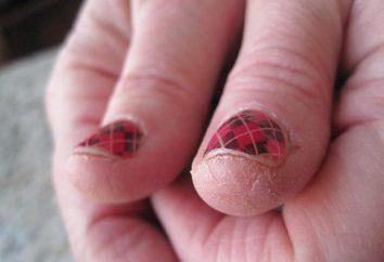 Bardzo sucha skóra rąk: co robić? Kosmetyki i środki do pielęgnacji skóry ludowe