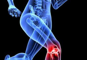L'inflammation des ligaments: symptômes et traitement