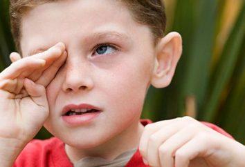No llores, bebé, o cómo tratar la conjuntivitis en niños
