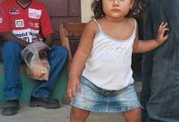 Sintomas e sinais de raquitismo em uma criança