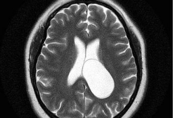 Cisti cerebrali pareti trasparenti